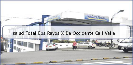 <b>salud Total Eps Rayos X De Occidente Cali Valle</b>