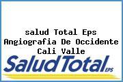 <i>salud Total Eps Angiografia De Occidente Cali Valle</i>