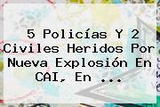 5 Policías Y 2 Civiles Heridos Por Nueva Explosión En CAI, En ...