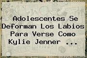 Adolescentes Se Deforman Los Labios Para Verse Como <b>Kylie Jenner</b> <b>...</b>
