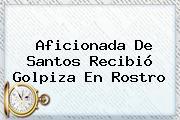 Aficionada De Santos Recibió Golpiza En Rostro