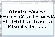 <b>Alexis Sánchez</b> Mostró Cómo Le Quedó El Tobillo Tras La Plancha De ...