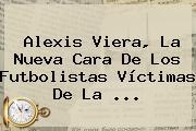 <b>Alexis Viera</b>, La Nueva Cara De Los Futbolistas Víctimas De La <b>...</b>