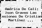 <b>América De Cali</b>: ¿son Graves Las Lesiones De Cristian Martínez ...