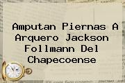 Amputan Piernas A Arquero <b>Jackson Follmann</b> Del Chapecoense