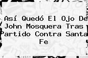 Así Quedó El Ojo De John Mosquera Tras Partido Contra <b>Santa Fe</b>