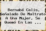<b>Bernabé Celis</b>, Señalado De Maltrato A Una Mujer, Se Quemó En Las ...