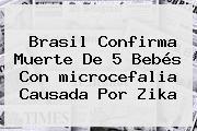 Brasil Confirma Muerte De 5 Bebés Con <b>microcefalia</b> Causada Por Zika