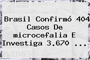 Brasil Confirmó 404 Casos De <b>microcefalia</b> E Investiga 3.670 <b>...</b>