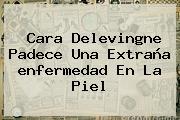 <b>Cara Delevingne</b> Padece Una Extraña <b>enfermedad</b> En La Piel