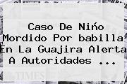 Caso De Niño Mordido Por <b>babilla</b> En La Guajira Alerta A Autoridades ...