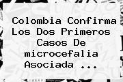Colombia Confirma Los Dos Primeros Casos De <b>microcefalia</b> Asociada <b>...</b>