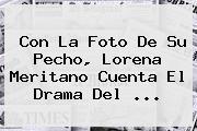 Con La Foto De Su Pecho, <b>Lorena Meritano</b> Cuenta El Drama Del ...