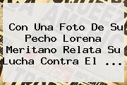 Con Una Foto De Su Pecho <b>Lorena Meritano</b> Relata Su Lucha Contra El ...