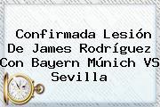 Confirmada Lesión De James Rodríguez Con <b>Bayern</b> Múnich VS Sevilla