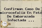 Confirman Caso De <b>microcefalia</b> En Feto De Embarazada Infectada <b>...</b>