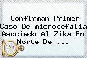 Confirman Primer Caso De <b>microcefalia</b> Asociado Al Zika En Norte De <b>...</b>