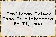 Confirman Primer Caso De <b>rickettsia</b> En Tijuana