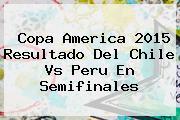 Copa America 2015 Resultado Del <b>Chile Vs Peru</b> En Semifinales