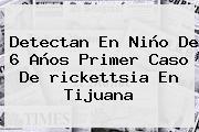 Detectan En Niño De 6 Años Primer Caso De <b>rickettsia</b> En Tijuana