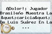 """¡Dolor!: Jugador Brasileño Muestra La """"caricia"""" De Luis Suárez En La ..."""