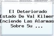 El Deteriorado Estado De <b>Val Kilmer</b> Enciende Las Alarmas Sobre Su <b>...</b>
