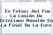 En Fotos: Así Fue La Lesión De <b>Cristiano Ronaldo</b> En La Final De La Euro