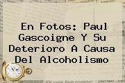 En Fotos: <b>Paul Gascoigne</b> Y Su Deterioro A Causa Del Alcoholismo
