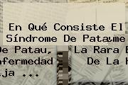 En Qué Consiste El <b>Síndrome De Patau</b>, La Rara Enfermedad De La Hija ...