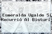 <b>Esmeralda Ugalde</b> Sí Recurrió Al Bisturí