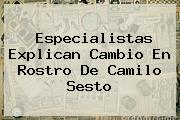 Especialistas Explican Cambio En Rostro De <b>Camilo Sesto</b>