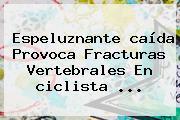 Espeluznante <b>caída</b> Provoca Fracturas Vertebrales En <b>ciclista</b> ...