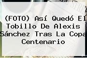(FOTO) Así Quedó El Tobillo De <b>Alexis Sánchez</b> Tras La Copa Centenario