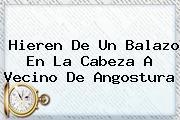 <b>Hieren De Un Balazo En La Cabeza A Vecino De Angostura</b>