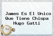 <b>James</b> Es El Unico Que Tiene Chispa Hugo Gatti