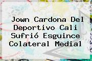 Jown Cardona Del <b>Deportivo Cali</b> Sufrió Esguince Colateral Medial