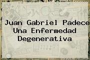 <b>Juan Gabriel</b> Padece Una Enfermedad Degenerativa