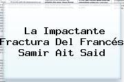 La Impactante Fractura Del Francés <b>Samir Ait Said</b>