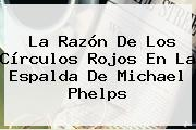 La Razón De Los Círculos Rojos En La Espalda De <b>Michael Phelps</b>