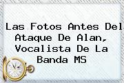 Las Fotos Antes Del Ataque De Alan, Vocalista De La <b>Banda MS</b>