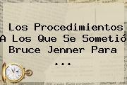 Los Procedimientos A Los Que Se Sometió <b>Bruce Jenner</b> Para <b>...</b>