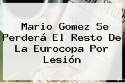 <b>Mario Gomez</b> Se Perderá El Resto De La Eurocopa Por Lesión