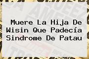 Muere La Hija De Wisin Que Padecía <b>Sindrome De Patau</b>