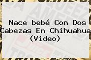 Nace <b>bebé Con Dos Cabezas</b> En Chihuahua (Video)