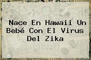 Nace En Hawaii Un Bebé Con El Virus Del <b>Zika</b>