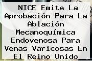 <b>NICE</b> Emite La Aprobación Para La Ablación Mecanoquímica Endovenosa Para Venas Varicosas En El Reino Unido