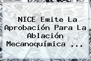 <b>NICE</b> Emite La Aprobación Para La Ablación Mecanoquímica ...