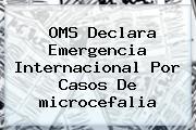 OMS Declara Emergencia Internacional Por Casos De <b>microcefalia</b>