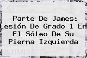 Parte De <b>James</b>: Lesión De Grado 1 En El Sóleo De Su Pierna Izquierda