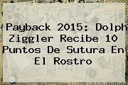 <b>Payback 2015</b>: Dolph Ziggler Recibe 10 Puntos De Sutura En El Rostro
